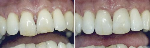 01. Esthetische tandheelkunde