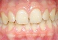 01. Het ontstaan van gaatjes en tandvleesontsteking