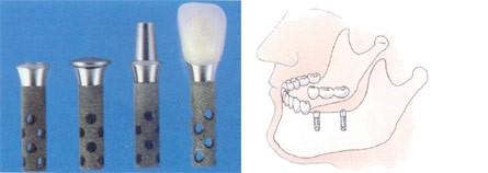 01.Implantaten