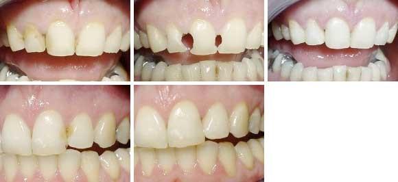 02. Esthetische tandheelkunde