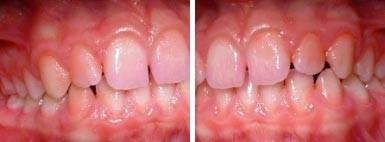 02. Het ontstaan van gaatjes en tandvleesontsteking