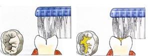 02. Sealen, bescherming tegen gaatjes
