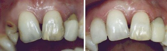 03. Esthetische tandheelkunde