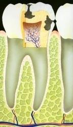 03. Het ontstaan van gaatjes en tandvleesontsteking