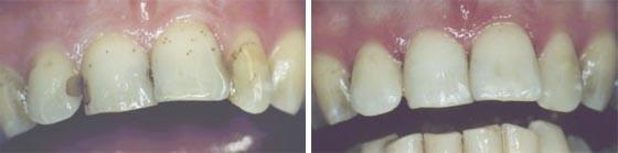 04. Esthetische tandheelkunde