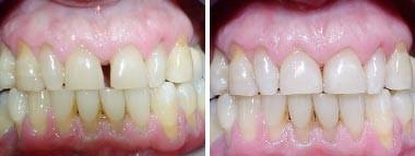 05. Esthetische tandheelkunde