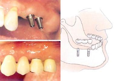 05. Implantaten