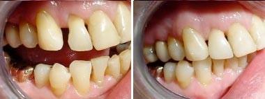 06. Esthetische tandheelkunde