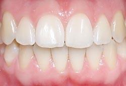 06. Het ontstaan van gaatjes en tandvleesontsteking