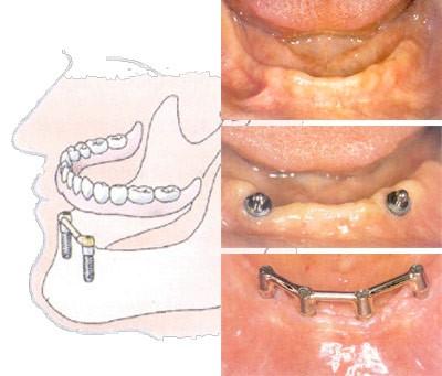 06. Implantaten