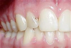 06. Vullingen in tanden en kiezen