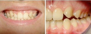 07. Esthetische tandheelkunde