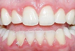 07. Het ontstaan van gaatjes en tandvleesontsteking