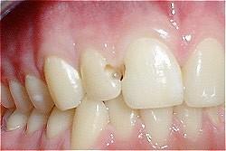 07. Vullingen in tanden en kiezen