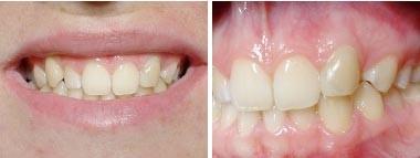 08. Esthetische tandheelkunde