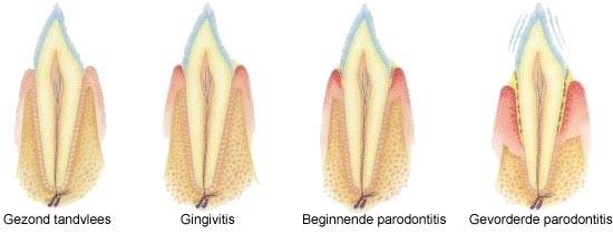 08. Het ontstaan van gaatjes en tandvleesontsteking