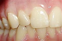 08. Vullingen in tanden en kiezen