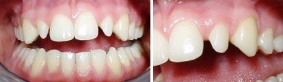 09. Esthetische tandheelkunde