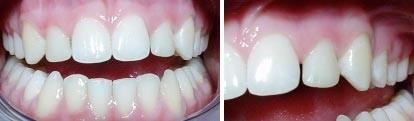 10. Esthetische tandheelkunde