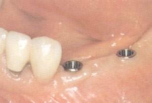 18. Implantaten