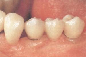21. Implantaten
