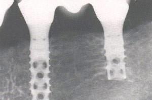 22. Implantaten