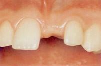 23. Implantaten